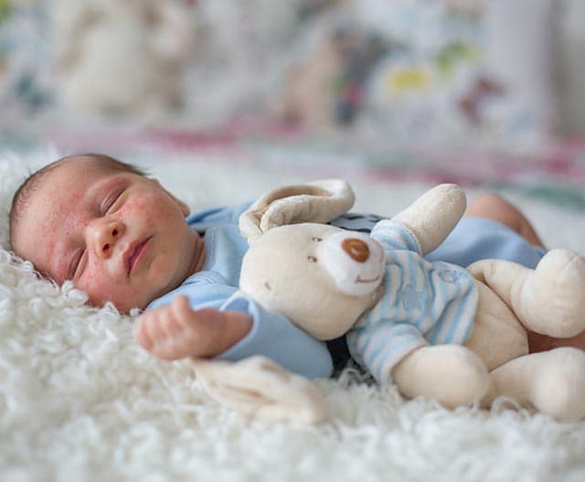 mottled skin and skin colour changes in babies